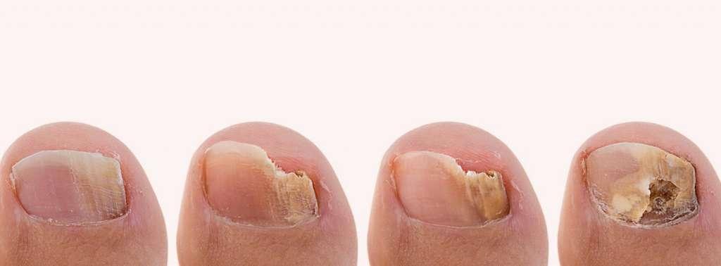 Fungal nail infection – Nail Fungus Clinic – London